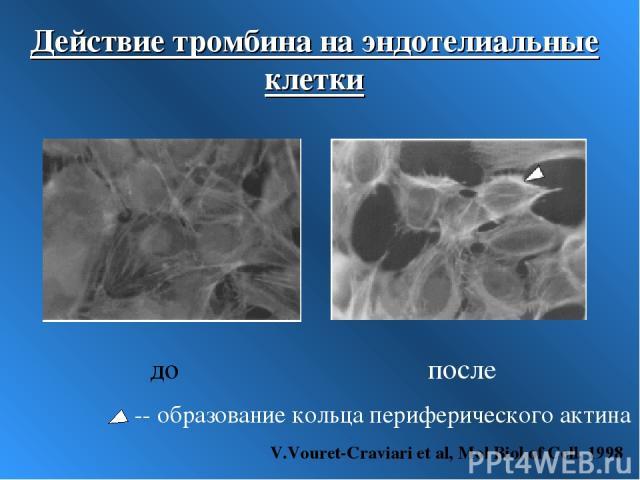 Действие тромбина на эндотелиальные клетки до после -- образование кольца периферического актина V.Vouret-Craviari et al, Mol Biol of Cell, 1998