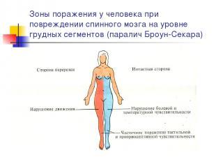 Зоны поражения у человека при повреждении спинного мозга на уровне грудных сегме