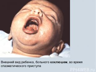 Внешний вид ребенка, больного коклюшем, во время спазматического приступа