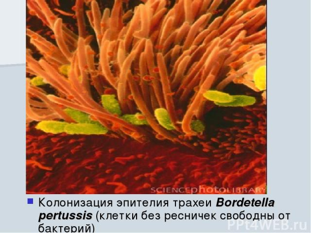 Колонизация эпителия трахеи Bordetella pertussis (клетки без ресничек свободны от бактерий)
