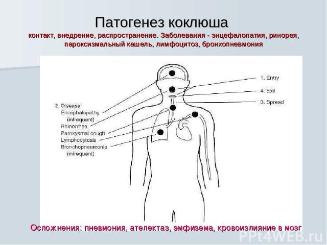 Патогенез коклюша контакт, внедрение, распространение. Заболевания - энцефалопатия, ринорея, пароксизмальный кашель, лимфоцитоз, бронхопневмония Осложнения: пневмония, ателектаз, эмфизема, кровоизлияние в мозг