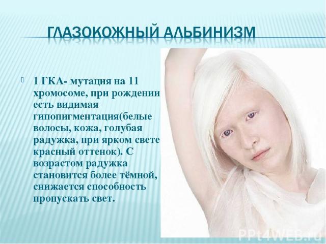 1 ГКА- мутация на 11 хромосоме, при рождении есть видимая гипопигментация(белые волосы, кожа, голубая радужка, при ярком свете красный оттенок). С возрастом радужка становится более тёмной, снижается способность пропускать свет.
