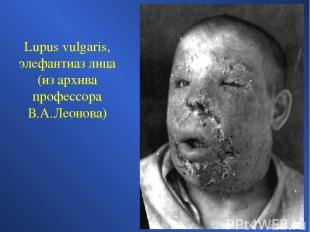 Lupus vulgaris, элефантиаз лица (из архива профессора В.А.Леонова)
