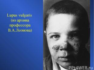 Lupus vulgaris (из архива профессора В.А.Леонова)