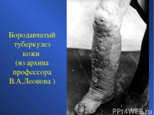 Бородавчатый туберкулез кожи (из архива профессора В.А.Леонова )