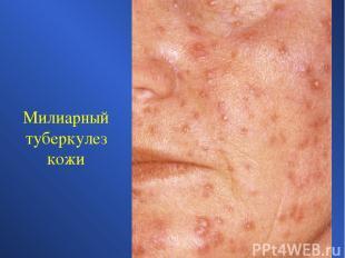 Милиарный туберкулез кожи