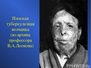 Плоская туберкулезная волчанка (из архива профессора В.А.Леонова)