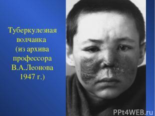 Туберкулезная волчанка (из архива профессора В.А.Леонова 1947 г.)