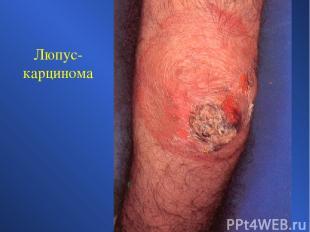 Люпус-карцинома