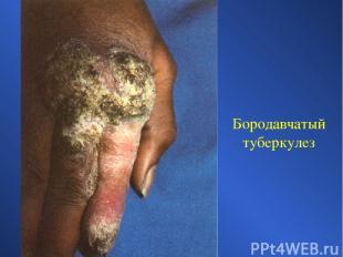 Бородавчатый туберкулез