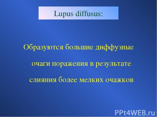 Lupus diffusus: Образуются большие диффузные очаги поражения в результате слияния более мелких очажков
