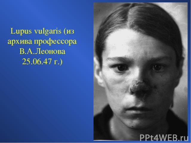 Lupus vulgaris (из архива профессора В.А.Леонова 25.06.47 г.)
