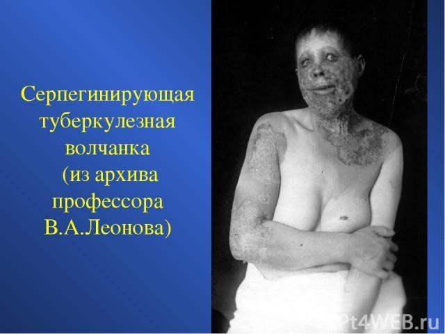 Серпегинирующая туберкулезная волчанка (из архива профессора В.А.Леонова)