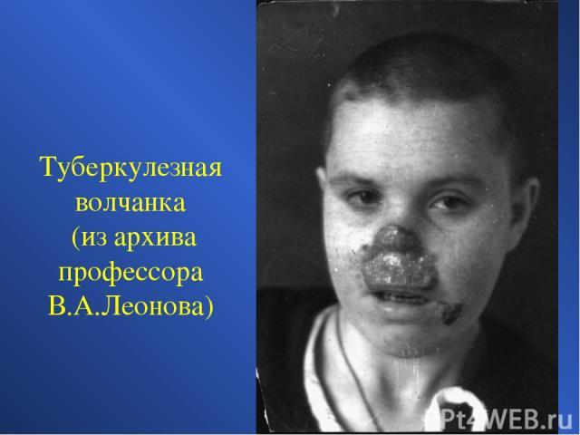 Туберкулезная волчанка (из архива профессора В.А.Леонова)