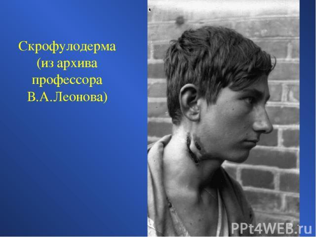 Скрофулодерма (из архива профессора В.А.Леонова)