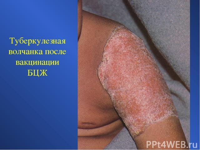 Туберкулезная волчанка после вакцинации БЦЖ