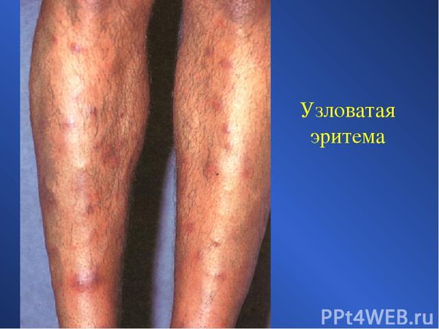 прогноз погоды узловатая эритема на ногах лечение установки значения массы