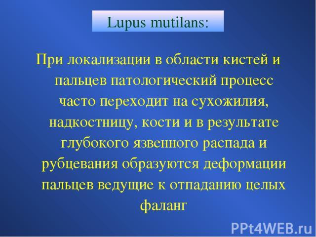Lupus mutilans: При локализации в области кистей и пальцев патологический процесс часто переходит на сухожилия, надкостницу, кости и в результате глубокого язвенного распада и рубцевания образуются деформации пальцев ведущие к отпаданию целых фаланг