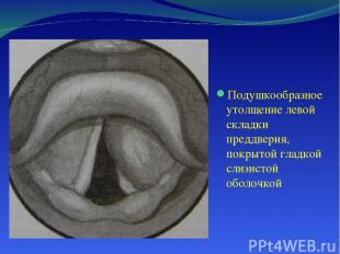Подушкообразное утолщение левой складки преддверия, покрытой гладкой слизистой о