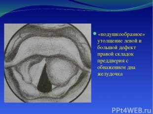 «подушкообразное» утолщение левой и большой дефект правой складок преддверия с о