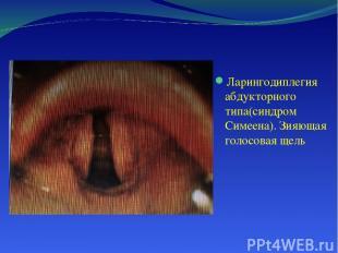 Ларингодиплегия абдукторного типа(синдром Симеена). Зияющая голосовая щель