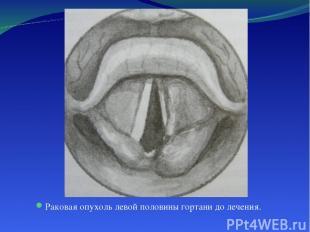 Раковая опухоль левой половины гортани до лечения.