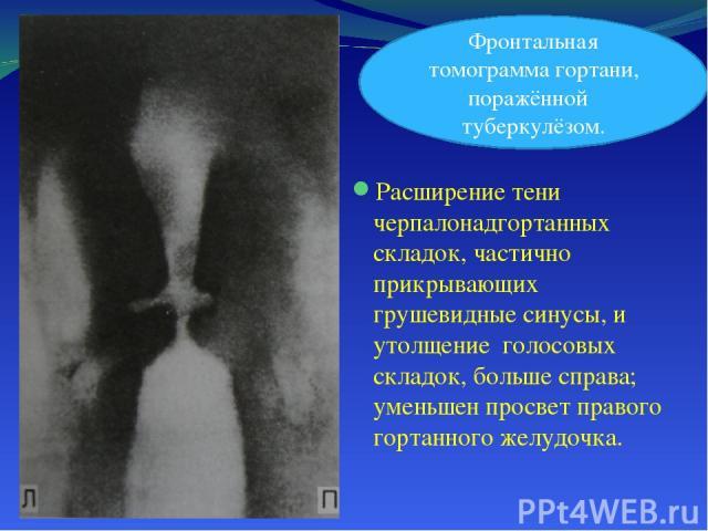 Расширение тени черпалонадгортанных складок, частично прикрывающих грушевидные синусы, и утолщение голосовых складок, больше справа; уменьшен просвет правого гортанного желудочка. Фронтальная томограмма гортани, поражённой туберкулёзом.