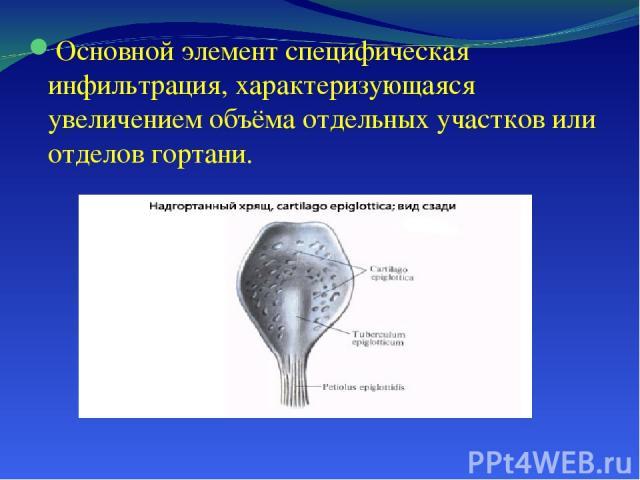 Основной элемент специфическая инфильтрация, характеризующаяся увеличением объёма отдельных участков или отделов гортани.