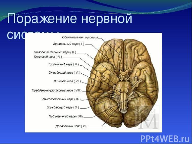 Поражение нервной системы.