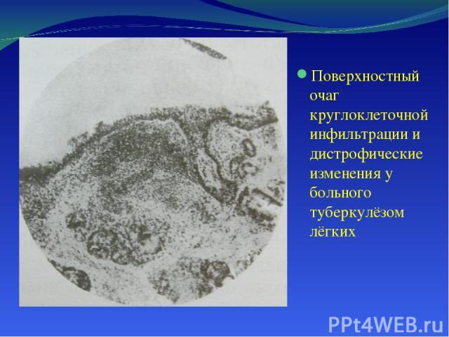 Поверхностный очаг круглоклеточной инфильтрации и дистрофические изменения у больного туберкулёзом лёгких