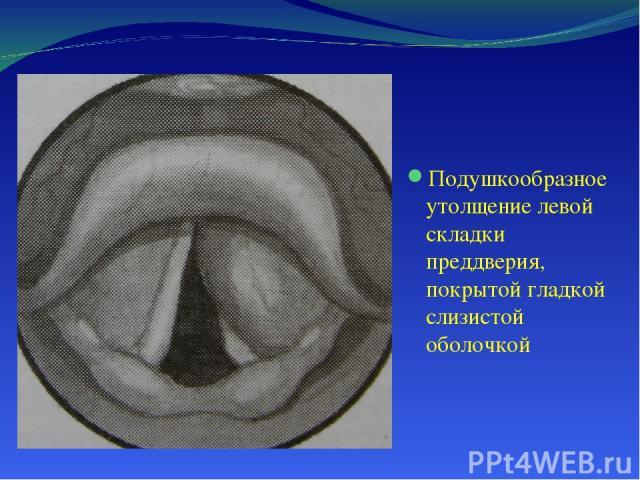 Подушкообразное утолщение левой складки преддверия, покрытой гладкой слизистой оболочкой