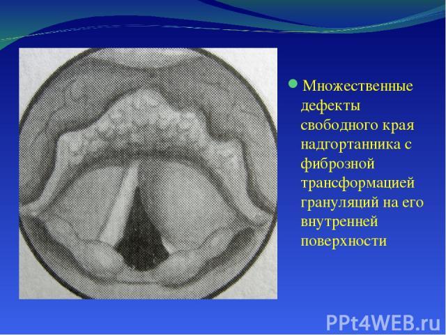 Множественные дефекты свободного края надгортанника с фиброзной трансформацией грануляций на его внутренней поверхности