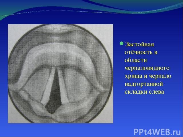 Застойная отёчность в области черпаловидного хряща и черпало надгортанной складки слева