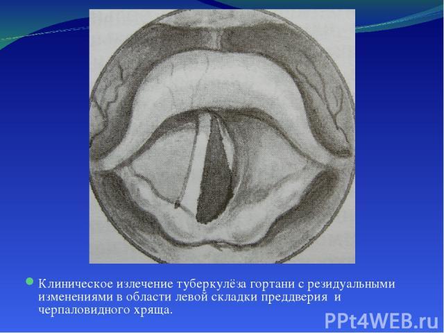 Клиническое излечение туберкулёза гортани с резидуальными изменениями в области левой складки преддверия и черпаловидного хряща.