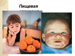 Пищевая аллергия.