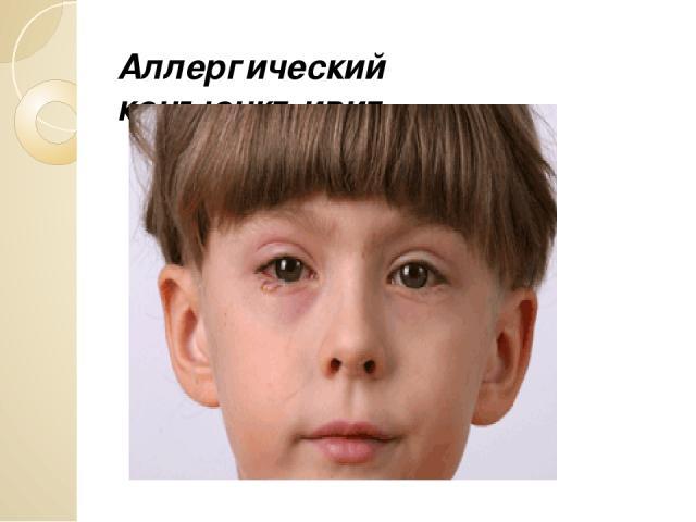 Аллергический конъюнктивит.