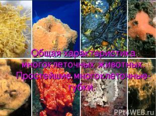 Общая характеристика многоклеточных животных. Простейшие многоклеточные- губки.