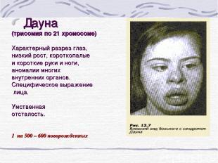 Дауна (трисомия по 21 хромосоме) Характерный разрез глаз, низкий рост, короткопа