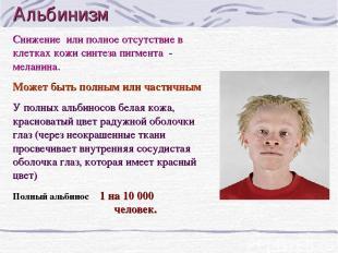 Альбинизм Снижение или полное отсутствие в клетках кожи синтеза пигмента - мелан