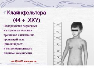 Клайнфельтера (44 + ХХY) Недоразвитие первичных и вторичных половых признаков и