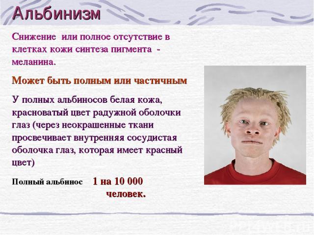 Альбинизм Снижение или полное отсутствие в клетках кожи синтеза пигмента - меланина. Может быть полным или частичным У полных альбиносов белая кожа, красноватый цвет радужной оболочки глаз (через неокрашенные ткани просвечивает внутренняя сосудистая…