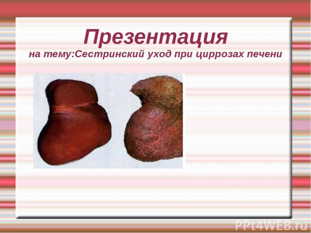 Презентация на тему:Сестринский уход при циррозах печени