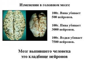 Изменения в головном мозге 100г. Вина убивает 500 нейронов. 100г. Пива убивает 3