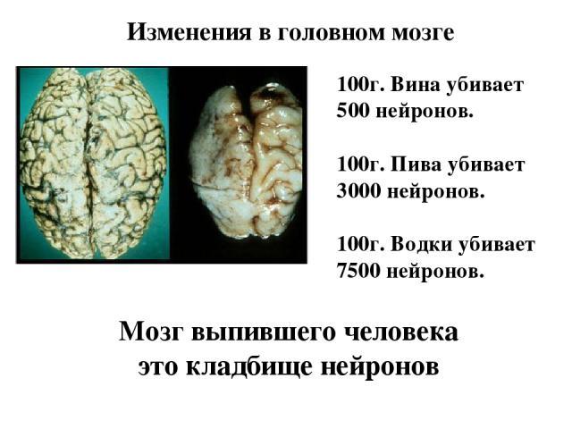 Изменения в головном мозге 100г. Вина убивает 500 нейронов. 100г. Пива убивает 3000 нейронов. 100г. Водки убивает 7500 нейронов. Мозг выпившего человека это кладбище нейронов