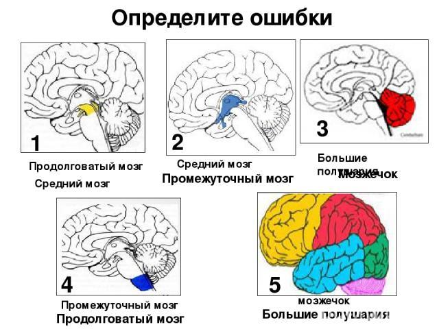 Большие полушария мозжечок Продолговатый мозг Средний мозг Определите ошибки Промежуточный мозг Мозжечок Продолговатый мозг Большие полушария Средний мозг Промежуточный мозг 1 2 3 4 5