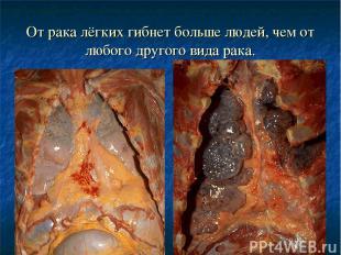 От рака лёгких гибнет больше людей, чем от любого другого вида рака.
