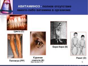 АВИТАМИНОЗ - полное отсутствие какого-либо витамина в организме Цинга (С) Рахит