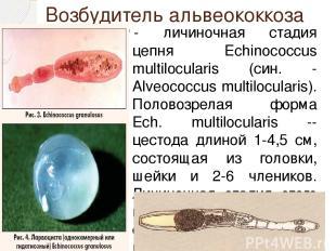 Возбудитель альвеококкоза - личиночная стадия цепня Echinococcus multilocularis