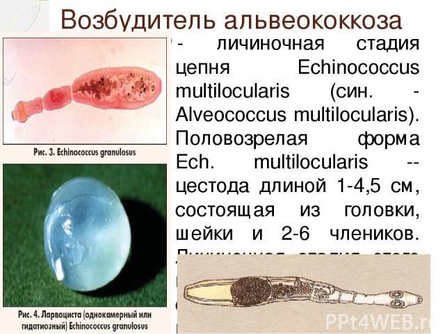 Возбудитель альвеококкоза - личиночная стадия цепня Echinococcus multilocularis (син. - Alveococcus multilocularis). Половозрелая форма Ech. multilocularis -- цестода длиной 1-4,5 см, состоящая из головки, шейки и 2-6 члеников. Личиночная стадия это…