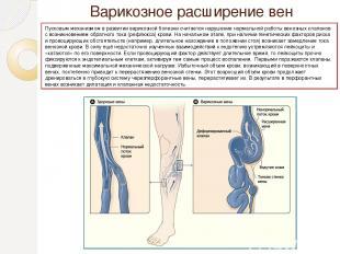 Варико зное расширение вен Пусковым механизмом в развитии варикозной болезни счи